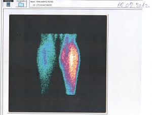 Spect scan - poremećena periferna cirkulacija - početak lečenja