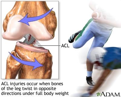 prednji ukršteni ligament - povreda