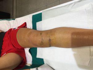 Povreda kolena - prenji ukršteni ligament - pro fizio