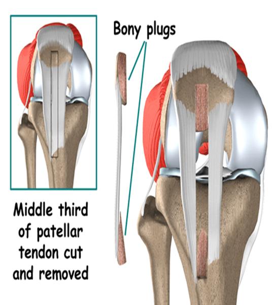 prednji ukšteni ligament - BPTB gradft